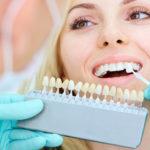 Wybielanie zębów – jak nadać im śnieżnobiałą barwę?